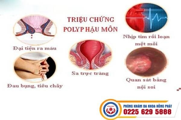 Polyp hậu môn gây nhiều triệu chứng khó chịu
