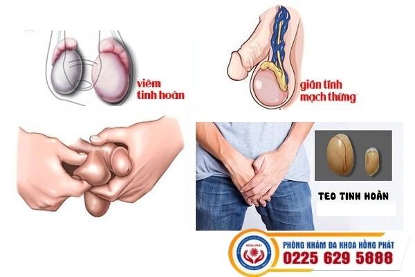 Các bệnh tinh hoàn thường gặp phương pháp điều trị hiệu quả tại Nam khoa Hồng Phát
