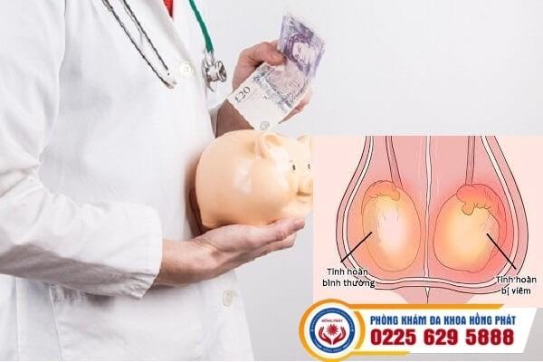 Chi phí hỗ trợ chữa viêm tinh hoàn hết bao nhiêu?