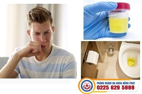 Nước tiểu có mùi hôi là bị bệnh gì – chữa trị hiệu quả tại phòng khám hồng phát
