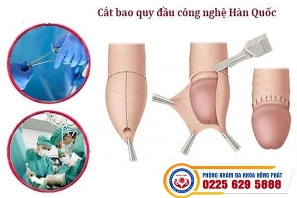 Phương pháp phẫu thuật cắt bao quy đầu không gây đau