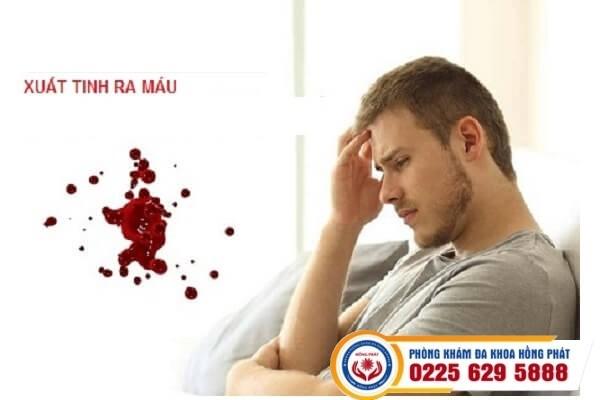 Xuất tinh ra máu dấu hiệu cảnh báo nhiều căn bệnh nguy hiểm
